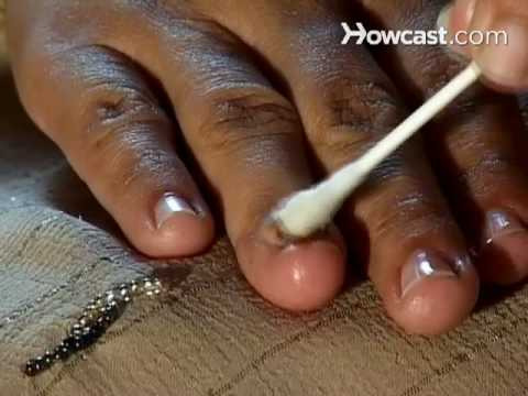 Soryasis at nail treatment