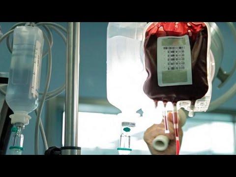 Die scharfe Thrombophlebitis oder die Blutpfropfembolie