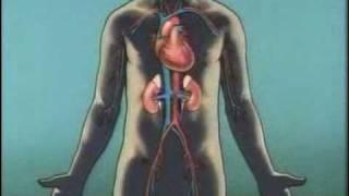 Dialysis for Kidney Disease
