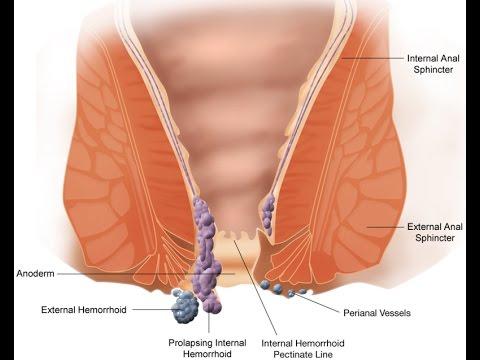 อาการปวด thrombophlebitis