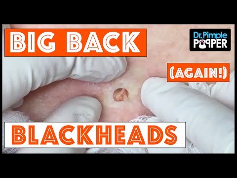 LARGEST Face Cysts! 24K Fold Peel Mask (Face Cleaning How To