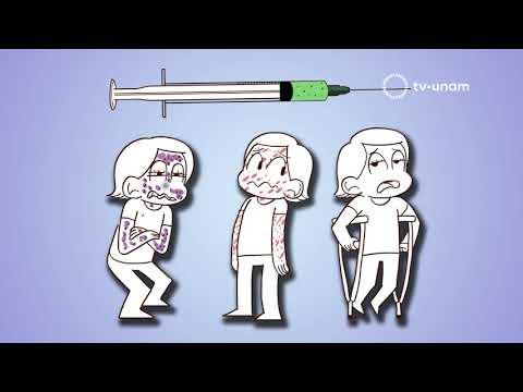 Parazitarea tratamentului articulațiilor