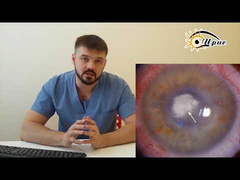 Симптомы фиолетовые круги под глазами