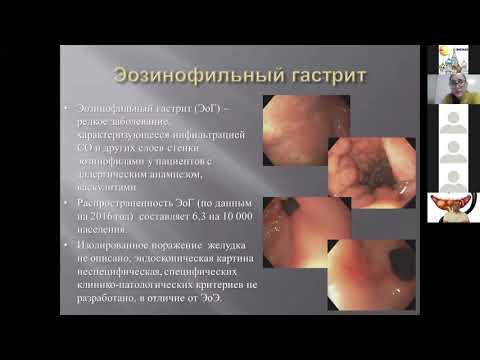 2 Маренич НС Аллергические болезни верхнего отдела ПТ у детей. Эозинофильные эзофагит и гастрит.