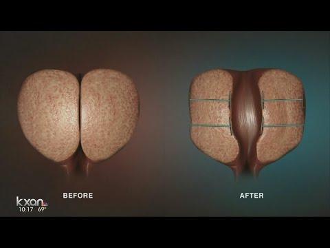 I più recenti sviluppi nel trattamento della prostatite