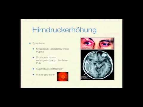 Verletzt Anforderungen für Hypertonie