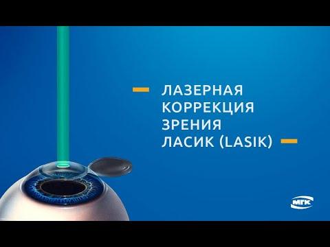 Видео Метод коррекции зрения LASIK (Ласик)