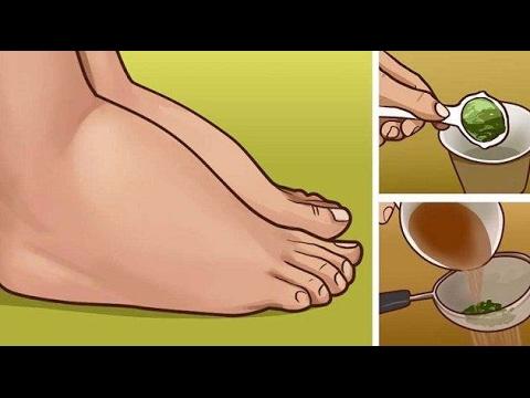 สุทธิสำหรับเท้าของเส้นเลือดขอด