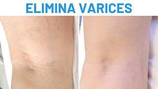 Eliminar varices con láser vascular | Testimonios Clínicas Diego de León Madrid
