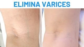 Eliminar varices con láser vascular | Testimonios Clínicas Diego de León Madrid - Clínicas Diego de León