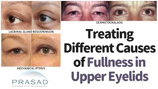 Different Causes of Fullness in the Upper Eyelids or Brow, and How to Treat Them