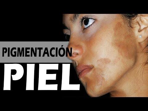 Atopichesky la dermatitis la análisis de sangre general