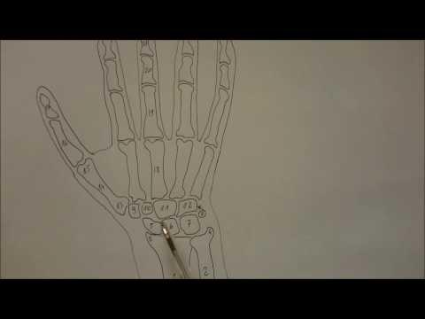 Eliminacja palucha koślawego palca stopy