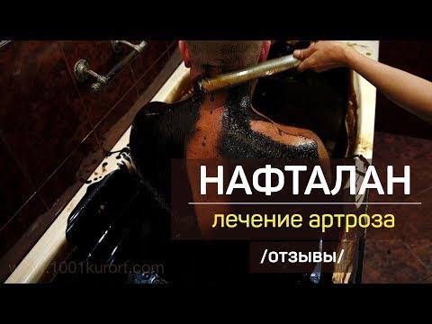 Нафталановая нефть и лечение артроза в санатории Чинар, Азербайджан. Отзывы  пациентов.