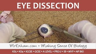 MrExham.com - Eye Dissection - GCSE/A Level/IB Biology