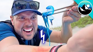 STUNG by a Man O' War Jellyfish!