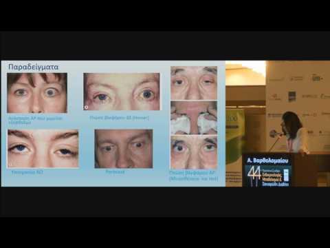 Βαρθολομαίου Αρετή - Δυσθυρεοειδική οφθαλμοπάθεια Διαφορική διάγνωση