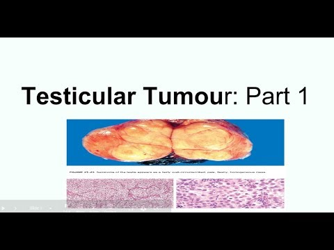 Neuroendocrine cancer head and neck