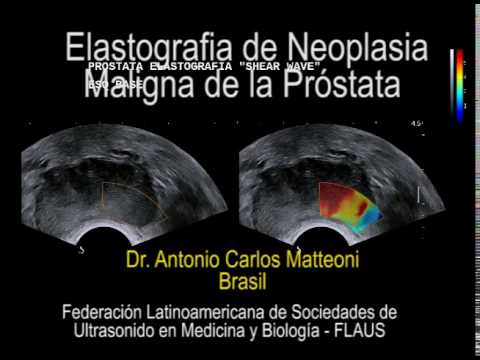 3stadii cancro della prostata