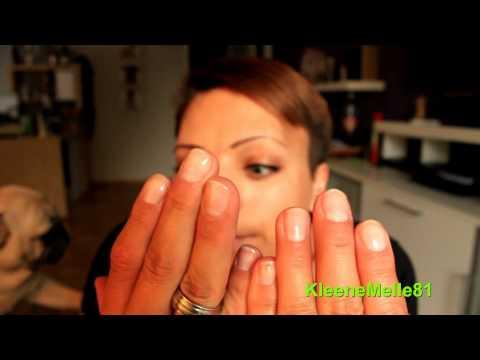 Die Behandlung gribka der Nägel vom Laser in wologde