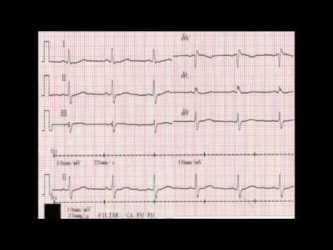 Hypertension due à une maladie discale dégénérative