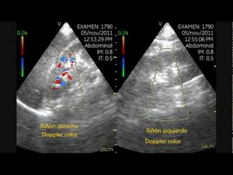 Left Renal Infarction - Pocket Ultrasound Bedside