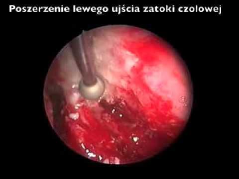 Wołgograd hemoroidy leczenie
