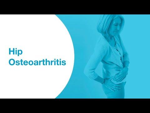 Ízületi gyulladás térdízületi kezelés 1. fokozatú kezelés