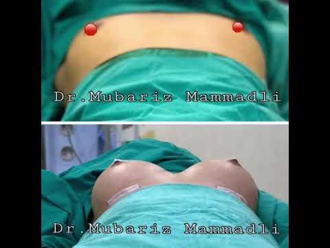 Die Vitamine für die Erhöhung der Brüste