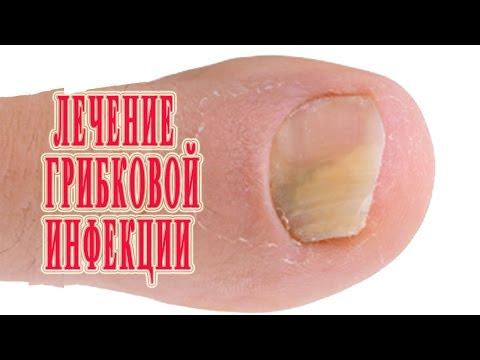 Die Salbe von gribka des Bauches