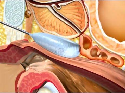 Aparelho TERMEKS tratamento de prostatite e adenoma
