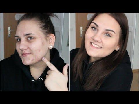 Wie die ganzen Poren auf der Person zu reinigen
