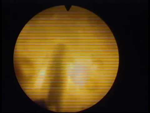 Umiarkowane zmiany rozproszone w tkankach gruczołu krokowego
