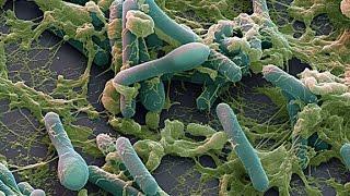 Самая опасная бактерия Clostridium Botulinum - вызывающая ботулизм способна уничтожить человечество!