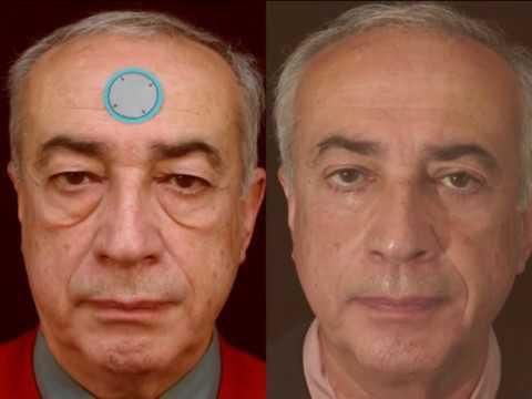 La procédure mezoroller pour la personne dans la cosmétologie