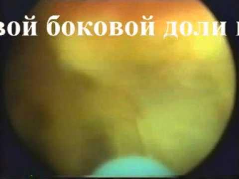 Что означает в урологии с-ч предстательной железы