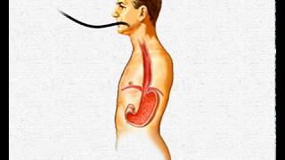 New Scarless Endoscopic Treatment for GERD