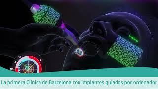 X-GUIDE CIRUGIA GUIADA POR ORDENADOR  - Clínicas Verdi