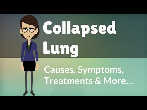 Video Collapsed Lung -  Causes, Symptoms, Treatments & More…