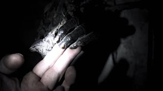 Scientist Takes Sample from Supposed Yeti Hand