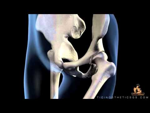 Attrezzature fisioterapia in osteocondrosi