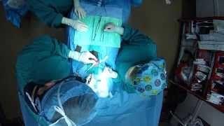 Subinguinal Varicocelectomy