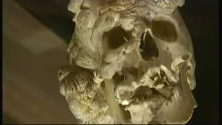 Joseph 'John' Merrick - let him rest in peace (UK) - BBC London News - 9th June 2016