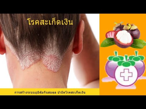 Oleoresin จาก neurodermatitis