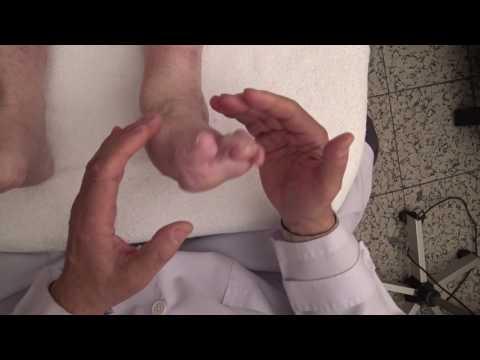 Die Abtragung des Kernes auf dem Daumen des Beines in woronesche