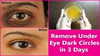Remove Under Eye Dark Circles in 3 Days   100% Effective Natural  Remedy for  Under Eye Dark Circles