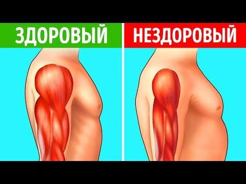 Медицина гипертония причины