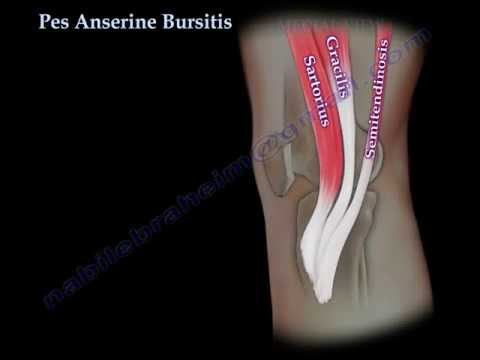 Video Pes Anserine Bursitis , knee pain  - Everything You Need To Know - Dr. Nabil Ebraheim