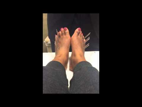 รองเท้ากับการรักษา hallux valgus