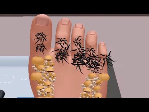 Durere varicoză la mers pe jos